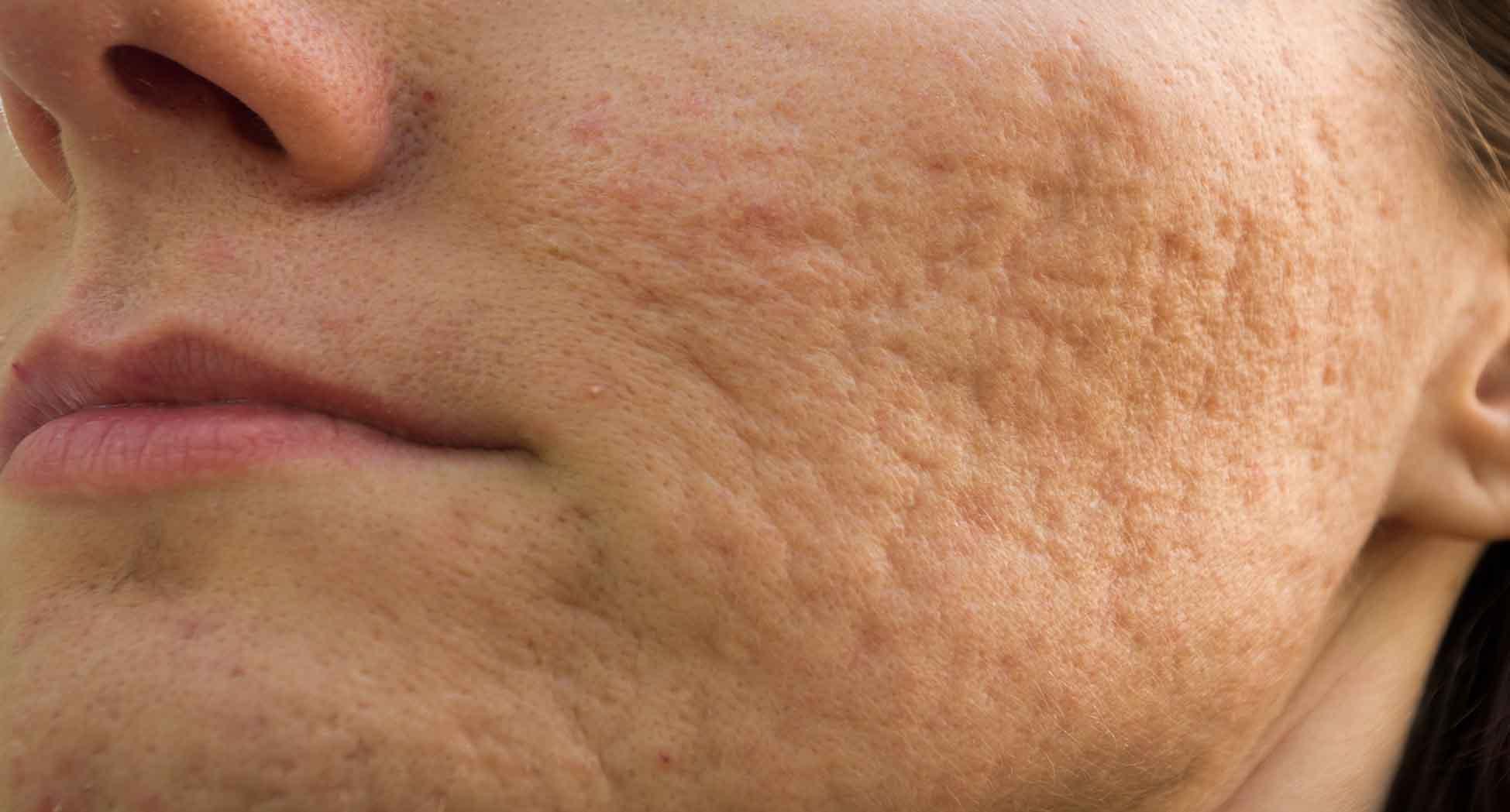 como quitar cicatrices acne