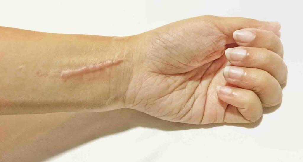 tratamientos cicatrices