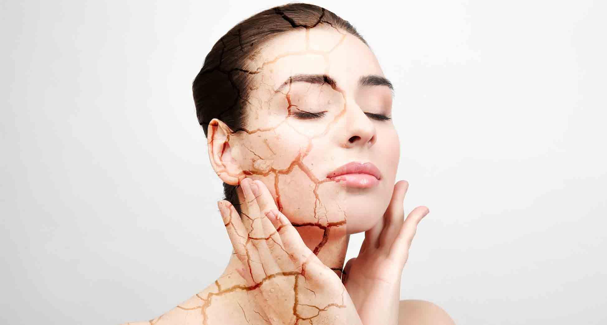 combatir piel seca