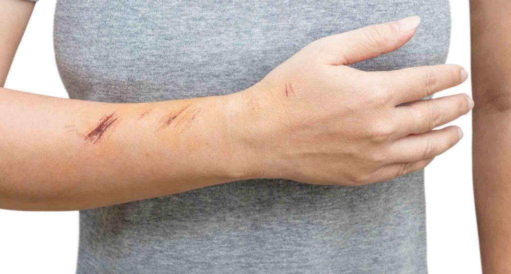 fases del proceso de cicatrización de la piel